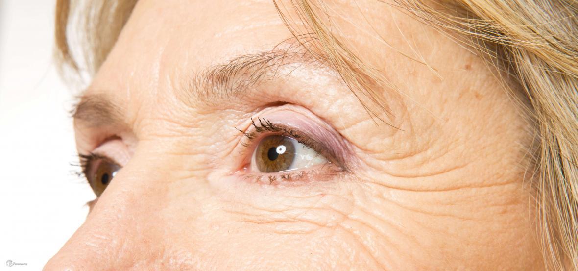 درمان چروک دور چشم با ترکیب ساده یک میوه و دارویی دَم دستی